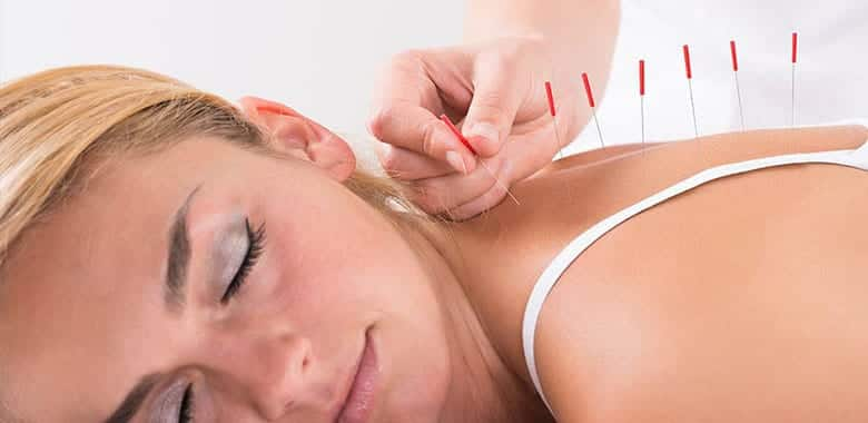 Dry Needling Therapy Newcastle - Hunter Physio Broadmeadow
